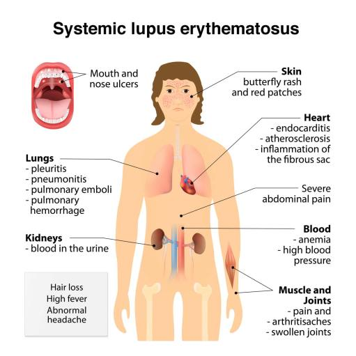 lupus-symptoms.jpg